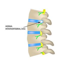 A hernia of the intervertebral disc vector
