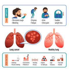 Lung infographic cartoon style vector