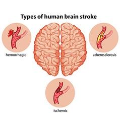Types of human brain stroke vector
