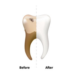 human tooth with old sick side with caries and vector image