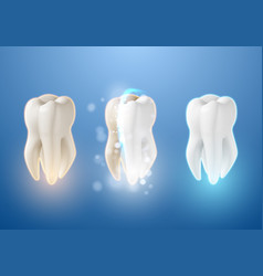 teeth whitening system 3d realistic tooth vector image