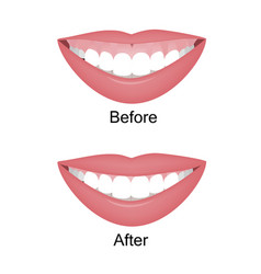 mouth with a high smile line or gummy smile before vector image