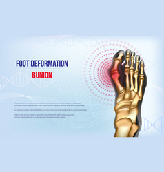 Foot deformation bunion vector