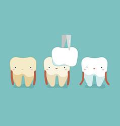 dental veneers teeth and tooth concept of dental vector image