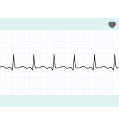 normal electrocardiogram ecg eps 8 vector image