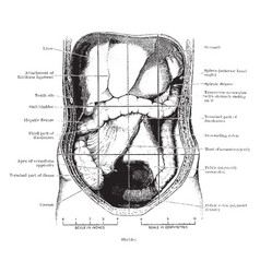 Abdomen laid open after removal of jejunum and vector