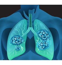 Lung cancer in human body vector image
