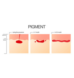 the process of engraftment of the pigment after vector image