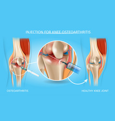 Injection for knee osteoarthritis medical chart vector