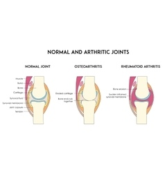 Normal and arthritic human joints vector
