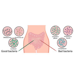 Intestinal bacterial flora good and bad bacteria vector