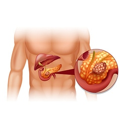 Pancreas cancer in human body vector
