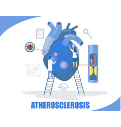 Atherosclerosis concept flat style design vector