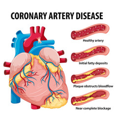 Coronary artery disease for health education vector