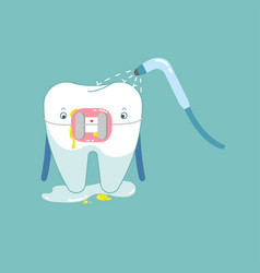 cleaning brace tooth for healthy dental dental vector image
