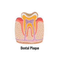 Dental plaque poster vector