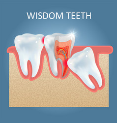 wisdom teeth problems poster design vector image
