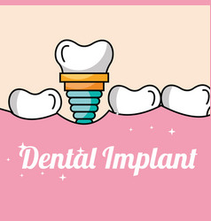 Dental implant tooth and gum inside mouth vector