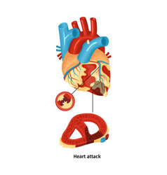 Heart attack poster vector