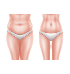Liposuction surgery before after woman body vector