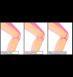 Types of arthritis knee medical vector