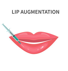 Lips injection augmentation vector