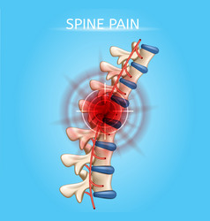 Human spine pain realistic medical scheme vector