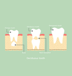 permanent tooth located below primary tooth vector image