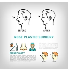 Rhinoplasty Nose Plastic Surgery logos art vector