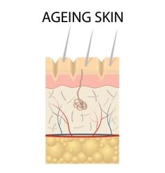 Old skin anatomy vector image vector image
