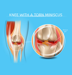 Injured knee joint with torn meniscus chart vector