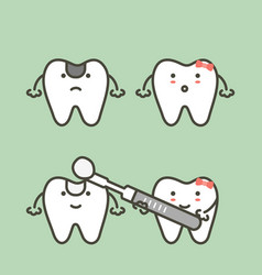 Step of decay tooth to teeth filling vector