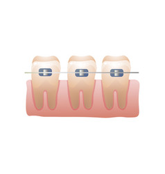 modern steel metal dental braces for young or old vector image