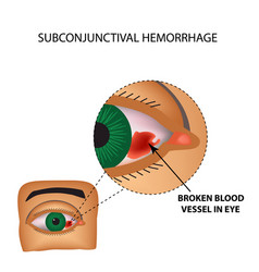 vessel in the eye burst inflammation and redness vector image