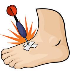Cartoon slained foot vector
