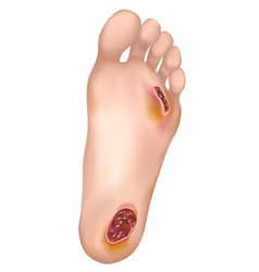 Diabetic foot vector image