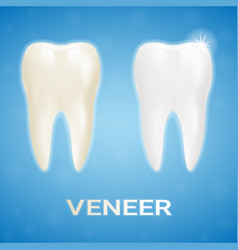 Tooth veneer whitening dental technician isolated vector