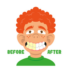 boy show teeth before and after clean vector image