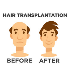 Hair transplantation before and after effect bald vector