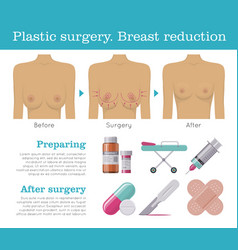plastic surgery breast reduction infographic vector image