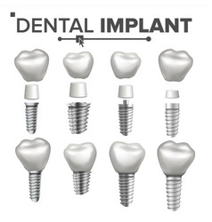dental implant set dental clinic vector image