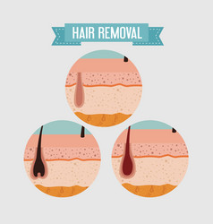 Layers skin structure with hair removal icons vector