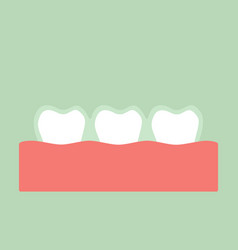 Teeth wear silicone trainer or invisible braces vector