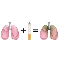 Healthy lungs plus cigarette result of lung cancer vector