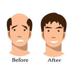 men thinning hair treatment before and after vector image