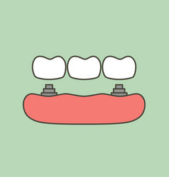 Tooth implant with bridge vector