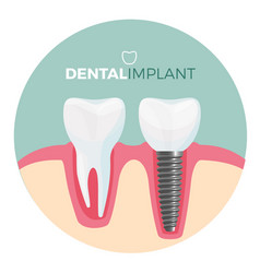 Dental implant placard with title on vector