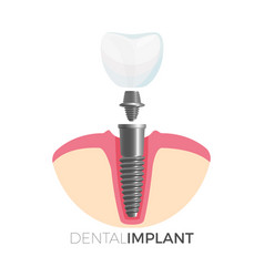dental implant tooth and screw on vector image