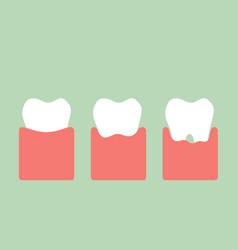 step of gum disease vector image vector image