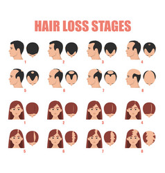 Hair loss stages isolated female and male vector